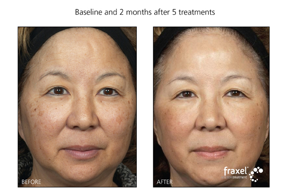 Laser Treatment for sundamage and pigmentation for residents of PA, NJ and NY