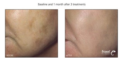 Laser treatment at Advanced Dermatology Milford