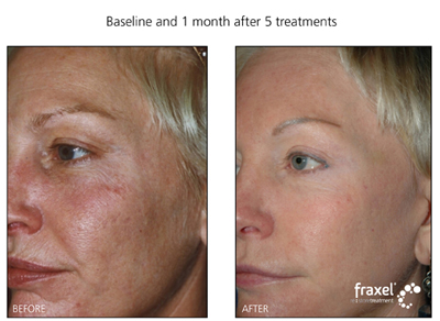 Laser treatment for Sundamaged and pigmentation. Call now, 570-296-4000 for more information