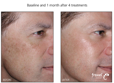 Fraxel Laser Treatment for sundamaged and facial pigmentaion