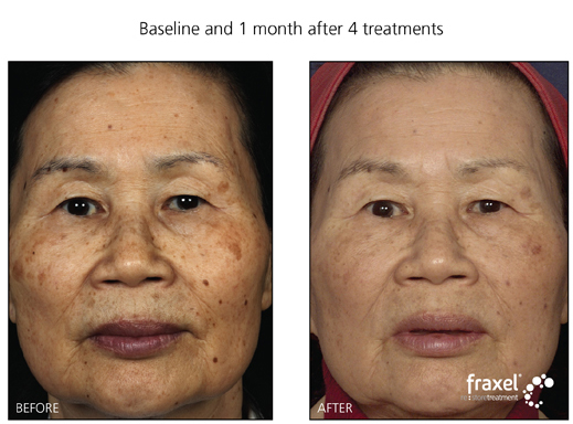 Fraxel Laser Treatment for residents of Pennsylavania, New Jersey and New York