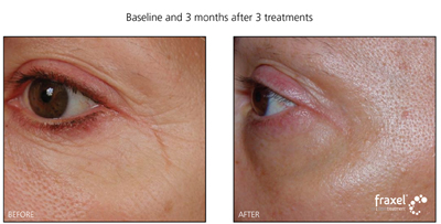 Fraxel Laser Treatment for Facial Wrinkles